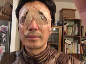 ICL手術後の眼帯写真